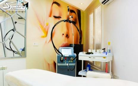 لیزر الکساندرایت به صورت ناحیه ای در مطب دکتر الون