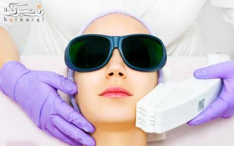 لیزر موهای زائد ویژه زیربغل در مطب دکتر سهرابی