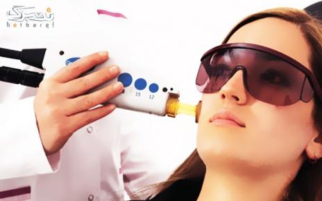 لیزر الکساندرایت ویژه زیر بغل در مطب دکتر فرجی