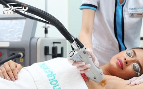 لیزر الکساندرایت کل بدن در مطب دکتر هراتی
