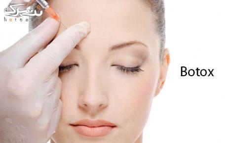 تزریق بوتاکس مسپورت در مطب دکتر عارفی