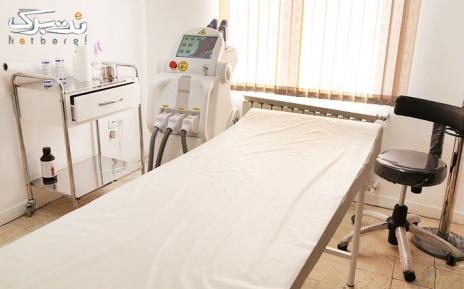 لیزر موهای زائد زیر بغل در مطب دکتر منتصری