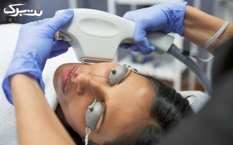 لیزر موهای زائد نواحی بدن در مطب خانم دکتر هاشمی