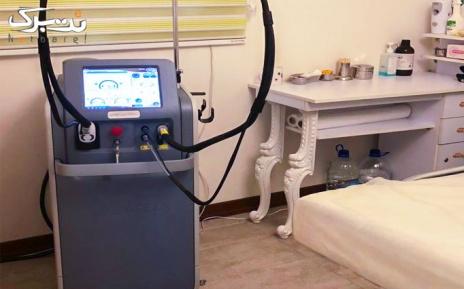 لیزر ویژه زیربغل با الکساندرایت توسط دکتر قنبرپور