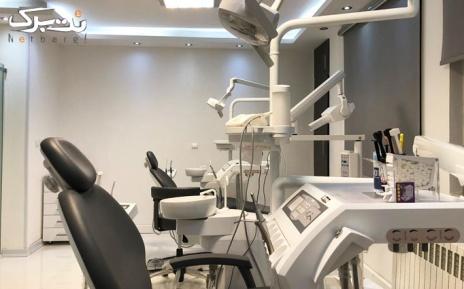 جرم گیری دندان (هر دو فک) در دندانپزشکی لبخند