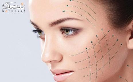 هایفوتراپی کل صورت در مرکز پوست و زیبایی مریم
