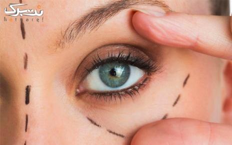 پلاسما جت پلک یا بینی در مرکز پوست و زیبایی مریم