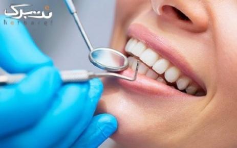 ترمیم هر واحد دندان با آمالگام در مطب دکتر عبدی