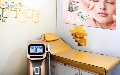 لیزر الکساندرایت رافائل 2020 در مرکز آلاء،نواحی