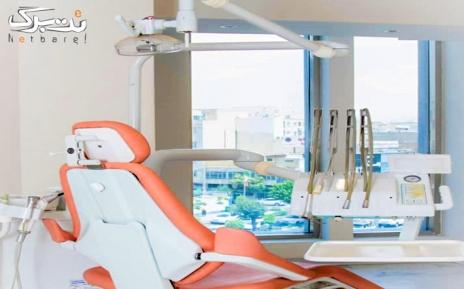 کامپوزیت زیبایی در مطب دکتر زهرا تاج آبادی
