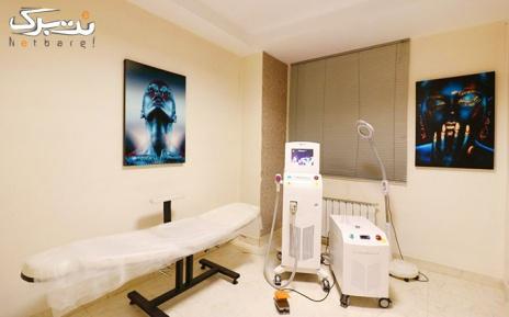 لیزر نواحی مختلف بدن در مرکز لیزر ونوس(عظیمی)