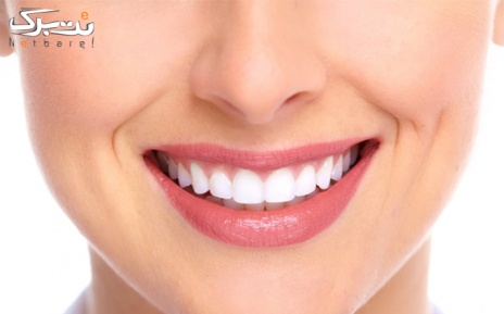 ایمپلنت دندان در مرکز دندانپزشکی لاویه
