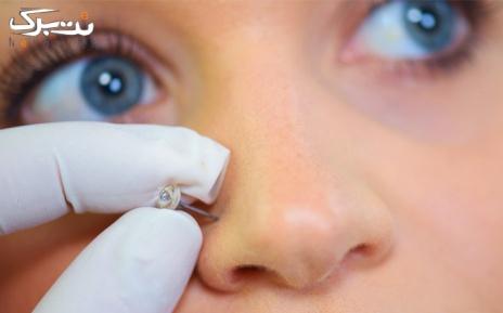 پیرسینگ بینی در مرکز تخصصی پوست و لیزر دنیا خانم