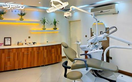 بلیچینگ دو فک در مرکز دندانپزشکی اپال