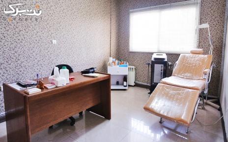 لیزر الکساندرایت زیربغل و بیکینی در مطب پزشک
