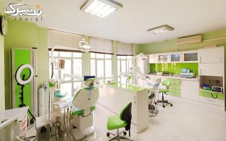 فلورایدتراپی دو فک کودکان دندانپزشکی خانواده