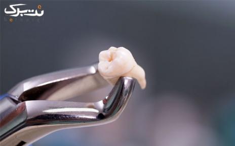 عصب کشی سه کانال با دستگاه rotary در مطب دکتر نوری
