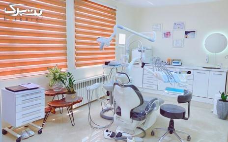 ترمیم یک سطحی در مطب دکتر خلیفه