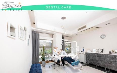 پلیش دندان در دندانپزشکی دایموند