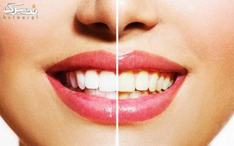 کشیدن دندان در مرکز دندانپزشکی آرنا