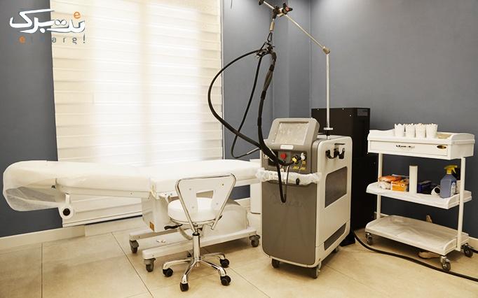 لیزر دستگاه الکساندرایت در مطب دکتر کریم زاده