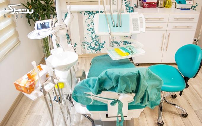 جرمگیری و بروساژ دندان توسط خانم دکتر ایرانی