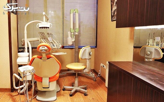 اصلاح طرح لبخند با کامپوزیت ونیر توسط دکتر قربانپو
