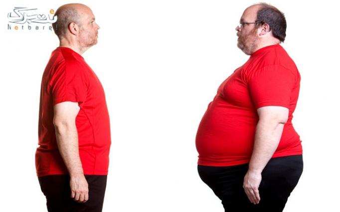RF و لاغری بدن در کلینیک آسانا