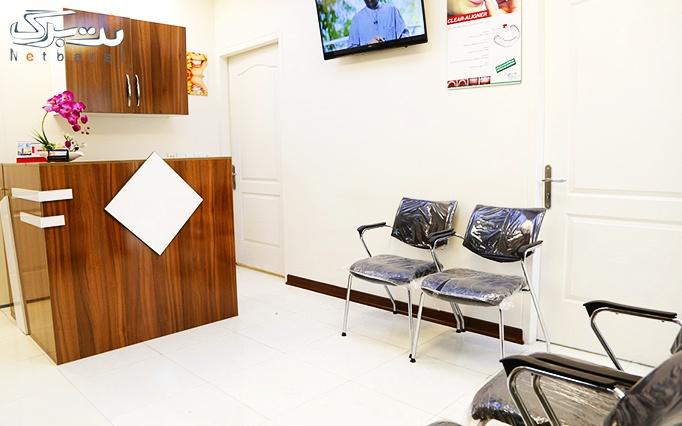 کامپوزیت دندان توسط دکتر معصومی