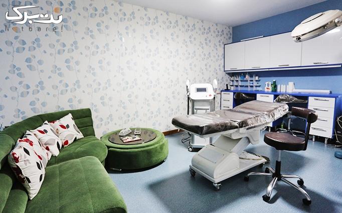 لیزر ایلایت shr در مطب دکتر گلشن