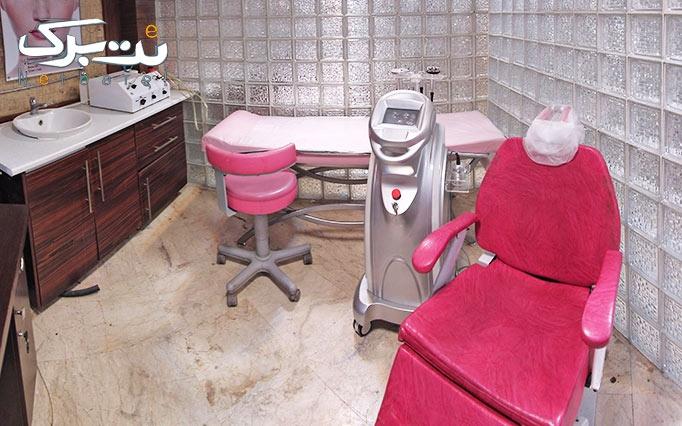 RF غبغب در مطب خانم دکتر میرئی