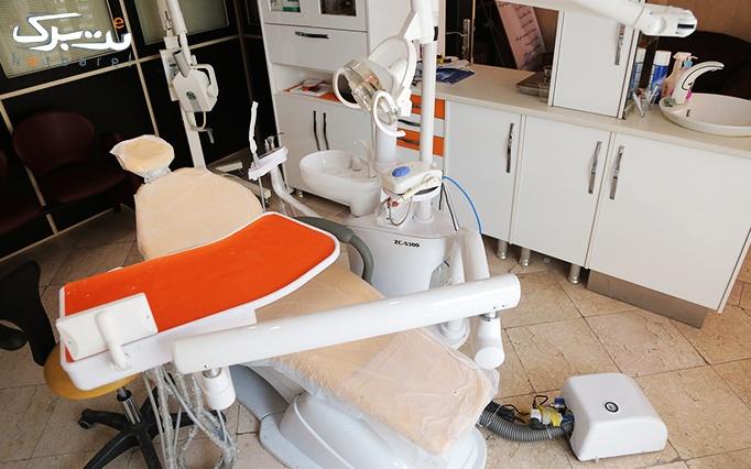 جرمگیری دندان توسط دکتر طالع