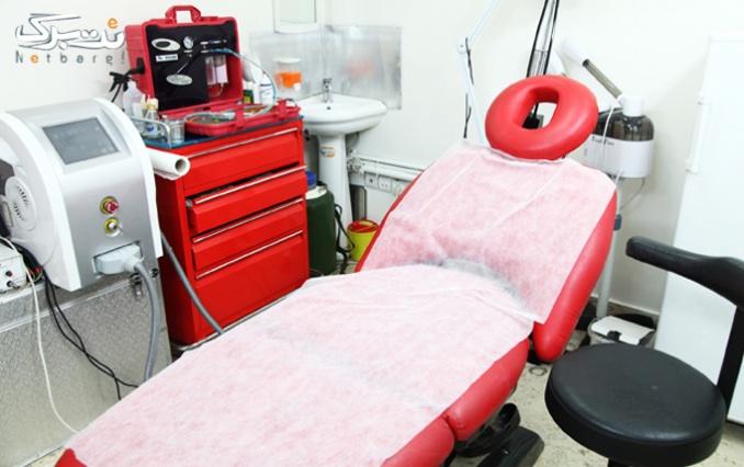 لیزر موهای زائد در مطب خانم دکتر سرلک