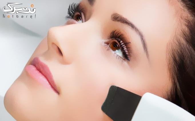 مزوتراپی صورت و مزوتراپی مو در مطب دکتر بهزادی