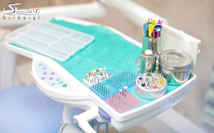 ایمپلنت دندان در مطب دکتر سمسارزاده