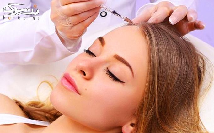 مزوتراپی صورت یا مزوتراپی مو در مطب دکتر محققی