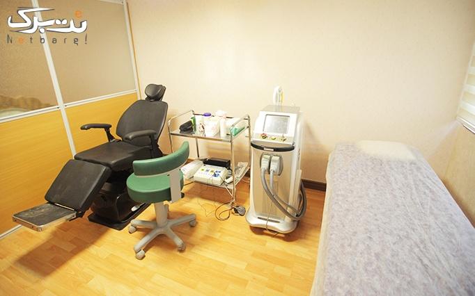 لیزر shr در مطب خانم دکتر ایران نژاد