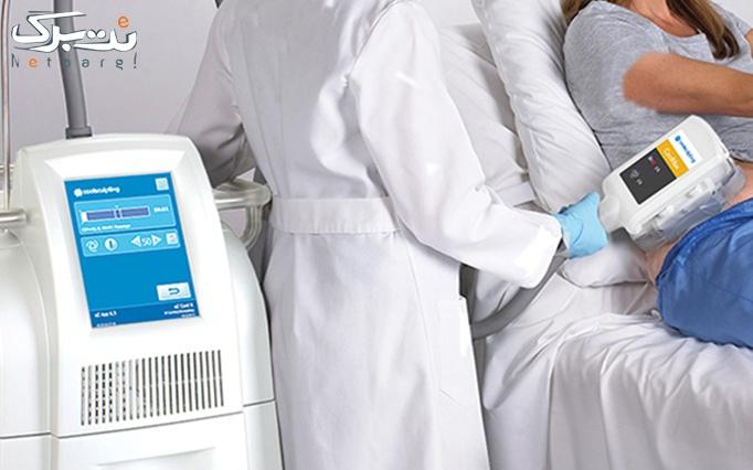 کرایولیپولیز در مطب خانم دکتر کریمی