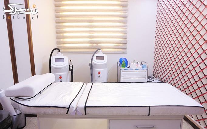 لاغری بدن و سلولیت lpg در مطب خانم دکتر کریمی