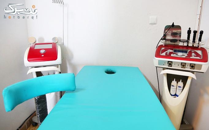 RF صورت یا غبغب در مطب دکتر سلطانی نژاد
