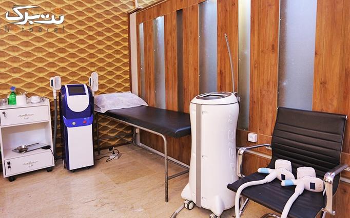 برداشتن خال با rf در مطب خانم دکتر کریمی