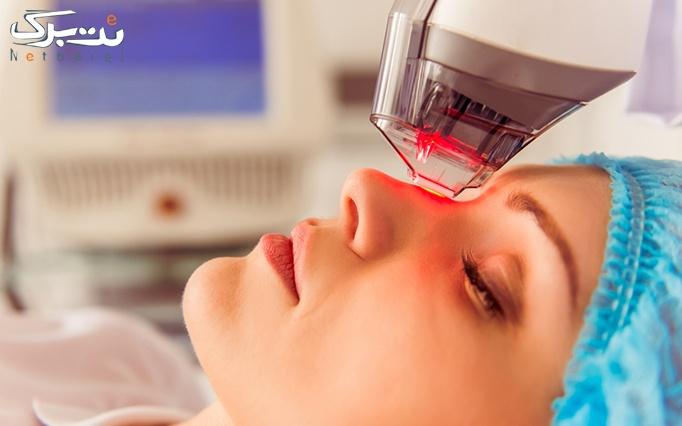 فرم دهی بینی با پلاسما جت در مطب دکتر شیرازی