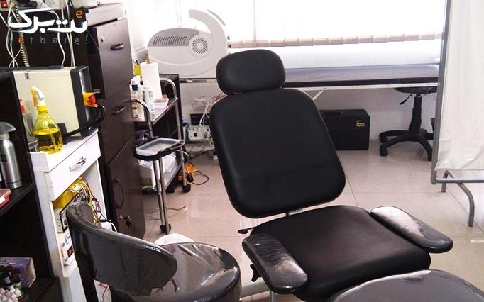 لیزر روشن کننده با دستگاه SHR در مطب دکتر شیرازی