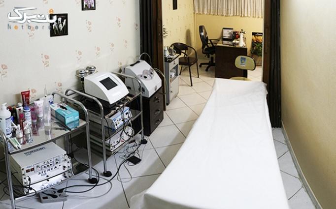 RF لیفتینگ صورت در مطب آقای دکتر اسلامی