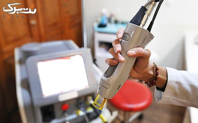 لیزر الکساندرایت زیر بغل در مطب دکتر اطمینان