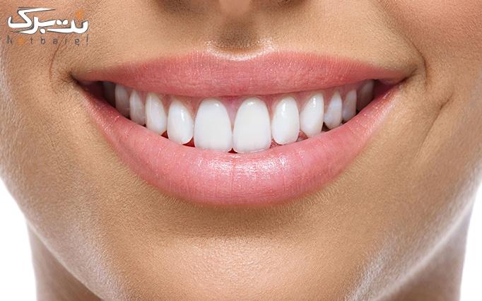 ونیر کامپوزیت دندان در دندانپزشکی دکتر دستوری