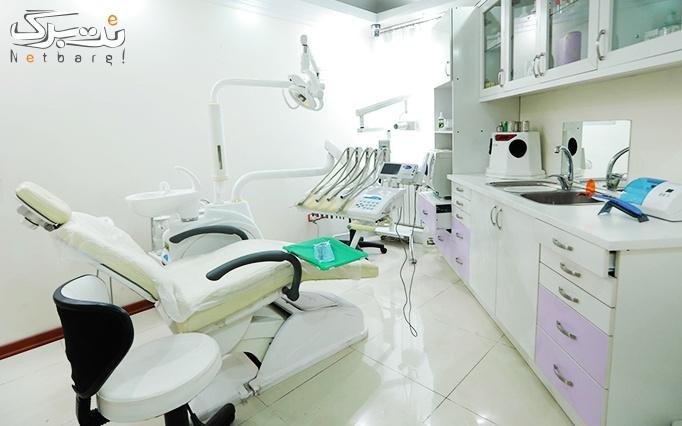 جرمگیری دندان در مطب دکتر فروتن نژاد