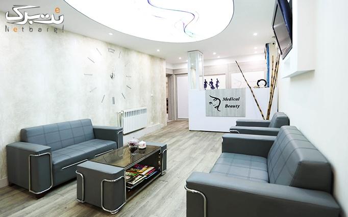 میکرودرم پوست در مطب دکتر پرتوی نژاد