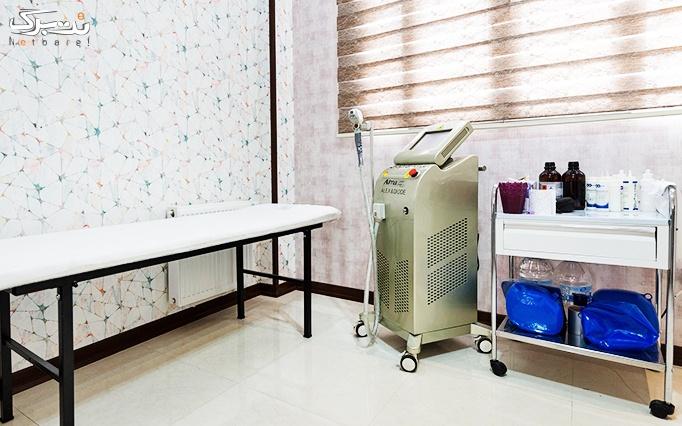 لیزر الکساندرایت آلما در مطب دکتر فخاری