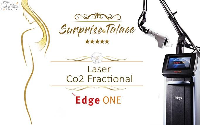 سورپرایز طلایی لیزر Co2 فرکشنال
